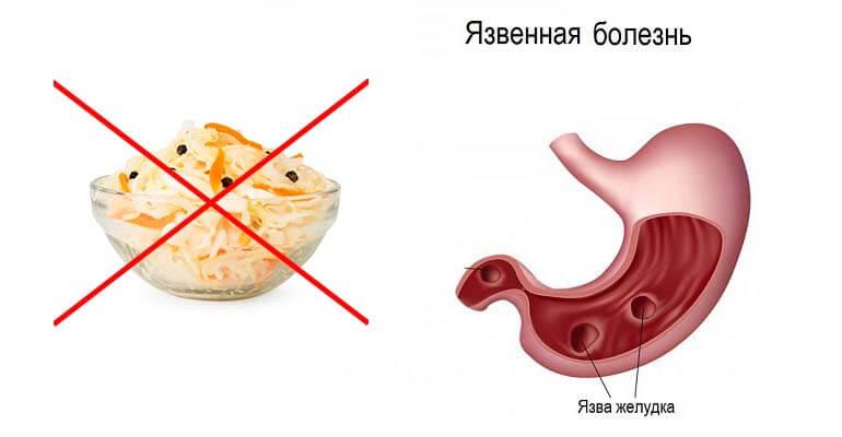 квашеная капуста польза +и вред +для организма